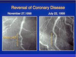 Reversal of Coronary Disease